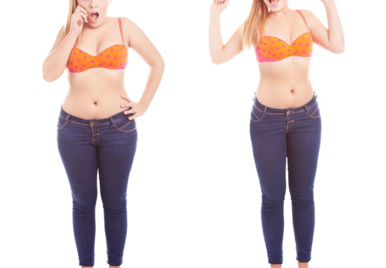 Top 4 Mental/Social Habits of Successful Weight Loss Surgery People